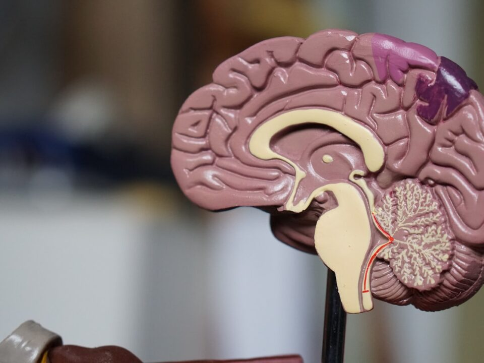 A model of the human brain on a stand. The background is unfocused.
